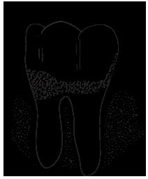gum-periodontic-dental-treatments-Hamilton